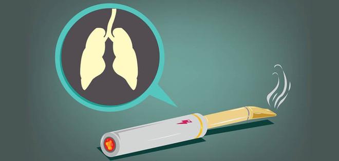 Thuốc lá điện tử không hề an toàn: Đã có bằng chứng cho thấy nó gây ung thư phổi - Ảnh 2.