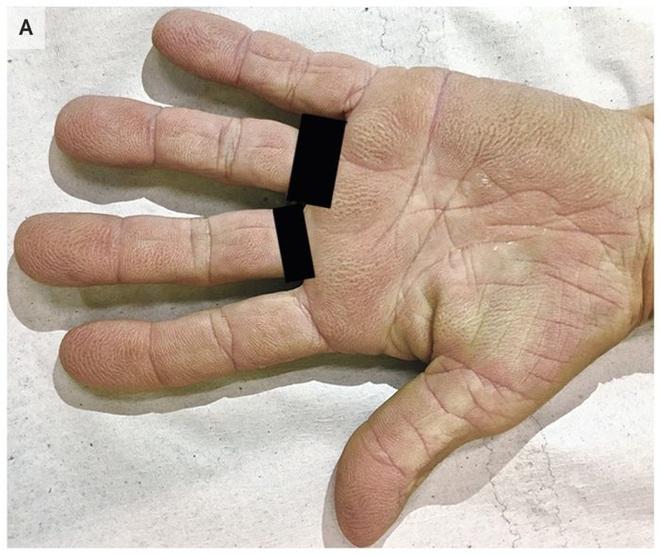 Dấu hiệu vân nhăn kỳ lạ trong lòng bàn tay thể hiện nguy cơ bệnh ung thư tiềm ẩn - Ảnh 1.