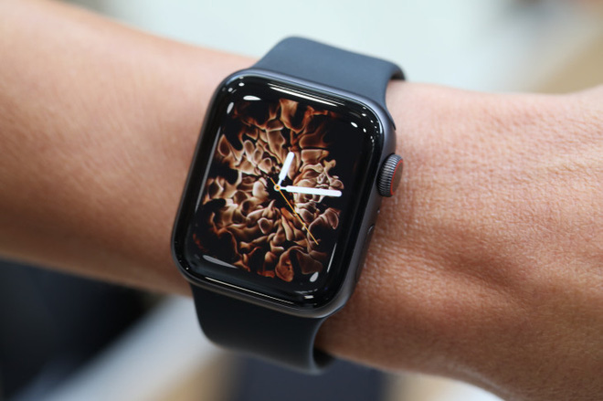 KHÔNG! Xiaomi Watch không phải bản sao giá rẻ của Apple Watch! - Ảnh 2.