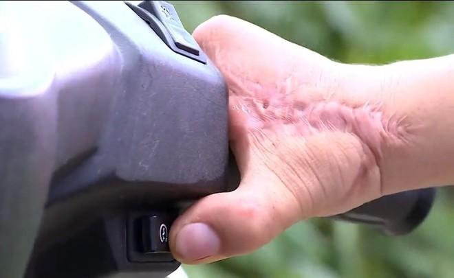 Việt Nam thực hiện thành công phẫu thuật siêu khó tầm cỡ quốc tế: lấy ngón CHÂN cái thay cho ngón TAY cái để phục hồi chức năng bàn tay! - Ảnh 6.