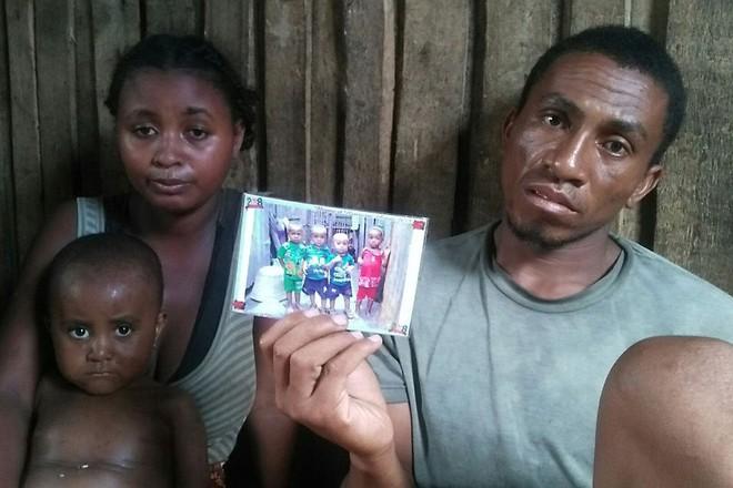 Gần 1.000 trẻ em ở Madagascar chết vì bệnh sởi, người dân không có đủ vắc-xin để tiêm - Ảnh 1.
