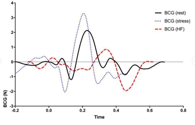 Bồn cầu cao cấp có khả năng đo nhịp tim khi người dùng đi trút bầu tâm sự, tại sao không? - Ảnh 5.