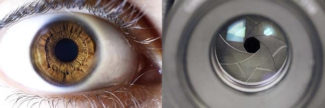 Điều gì sẽ xảy ra khi mống mắt của bạn rụng rời hết cả? - Ảnh 1.