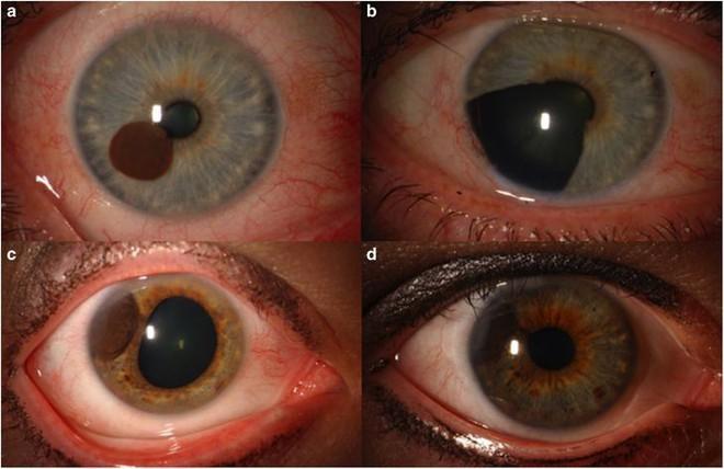 Tròng mắt cũng có thể bị ung thư và những gì xảy đến sau đó sẽ khiến bạn giật mình - Ảnh 3.
