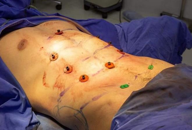 Tập gym mãi rồi nhưng chưa có cơ bụng 6 múi, cách đơn giản nhất là nhờ đến phẫu thuật thẩm mỹ - Ảnh 2.