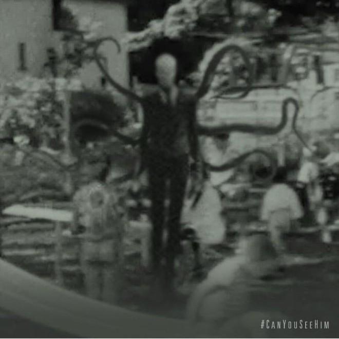 Không cần CGI, chứng bệnh lạ kỳ khiến chàng trai cao 1m98, nặng 55kg trở thành siêu sao phim kinh dị - Ảnh 17.
