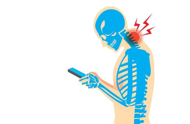 Gục đầu dùng điện thoại có thể khiến hộp sọ của bạn mọc đuôi - Ảnh 2.