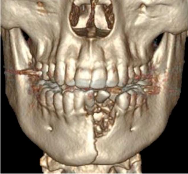 Thuốc lá điện tử phát nổ trong miệng khiến cậu bé 17 tuổi bay mất răng cửa, rạn đôi xương hàm - Ảnh 1.