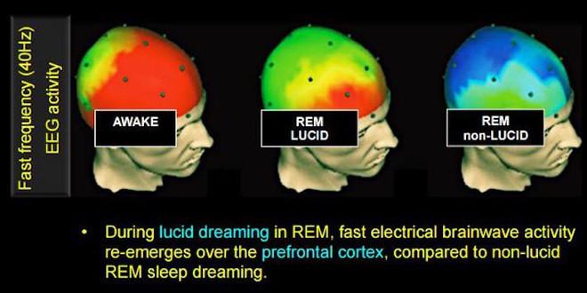 Đây là 3 phương pháp khoa học giúp bạn có được giấc mơ Lucid - Ảnh 2.
