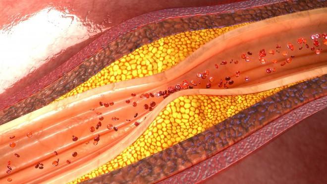 Ba triệu năm trước, chỉ vì mất một gen này mà con người trở thành loài động vật duy nhất dễ mắc bệnh tim mạch - Ảnh 2.