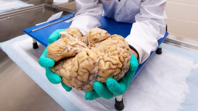 Căn bệnh bí ẩn chỉ được chẩn đoán sau khi bệnh nhân đã chết, bởi bác sĩ cần cắt não của họ - Ảnh 1.