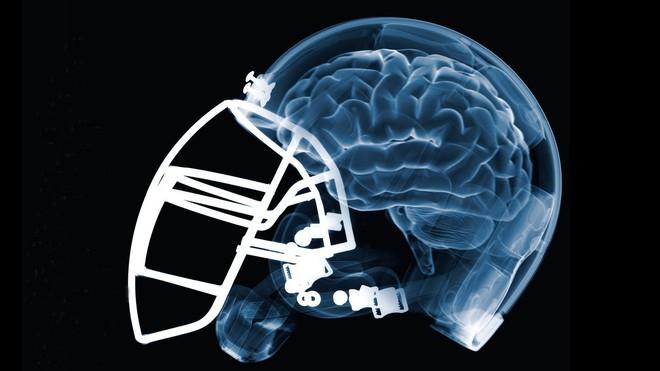 Căn bệnh bí ẩn chỉ được chẩn đoán sau khi bệnh nhân đã chết, bởi bác sĩ cần cắt não của họ - Ảnh 7.