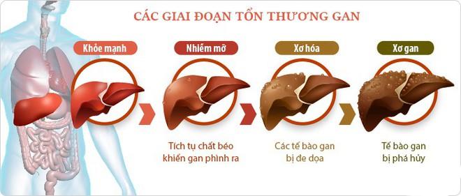 Đường ruột tự sinh ra rượu: Hội chứng kỳ lạ khiến nhiều người ăn cơm cũng say và mắc bệnh gan như người nghiện rượu - Ảnh 2.