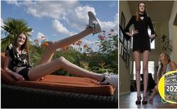 [Video] Cuộc sống của cô gái có đôi chân dài nhất thế giới