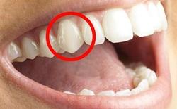 [Video] Không phải để xé thịt, tác dụng của những chiếc răng nanh trong miệng chúng ta là gì?