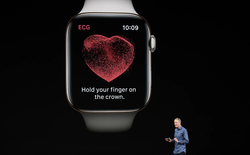 Apple Watch tạo dương tính giả, có thể làm đến 90% người nhận được cảnh báo tưởng mình mắc bệnh tim