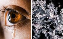 Loạt ảnh những vật dụng hằng ngày trong cuộc sống được soi dưới kính hiển vi khiến ai nhìn vào cũng phải kinh ngạc
