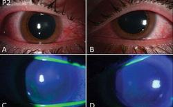 Hàng chục người bị tổn thương mắt trong đại dịch COVID-19 do dùng đèn UV diệt khuẩn
