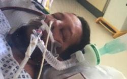 Bệnh nhân COVID-19 tỉnh lại sau 6 tuần hôn mê bỗng dưng nói được giọng nước ngoài