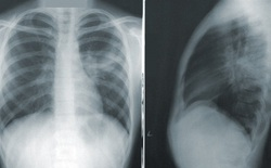 Công bố báo cáo khoa học về COVID-Net, mạng thần kinh nhân tạo có thể phát hiện dấu hiệu Covid-19 trong ảnh X-quang chụp phổi