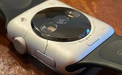 Cùng xem bộ sưu tập nguyên mẫu Apple Watch đời đầu siêu hiếm của nhà sưu tầm đến từ Italy