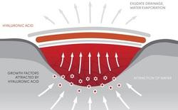 Đột phá: Các nhà khoa học phát minh ra loại gel có thể hàn gắn mọi vết thương trên cơ thể và trong cả nội tạng