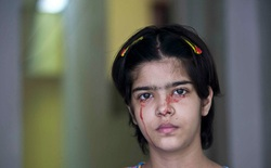 """Giải mã bí ẩn của haemolacria: """"Chứng bệnh"""" khiến những cô gái Ấn Độ khóc ra máu"""