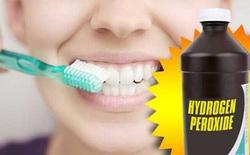 Học cách sử dụng hydrogen peroxide để làm trắng răng như trên Tik Tok: Chuyên gia khuyến cáo cần hết sức cẩn trọng!