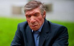 Nếu người Neanderthal không bị tuyệt chủng, thế giới sẽ ra sao?