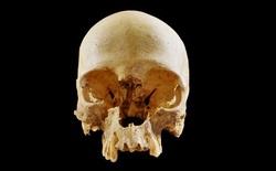 """Bí ẩn chiếc hộp sọ cô đơn trong """"Hố địa ngục"""" ở Italia"""