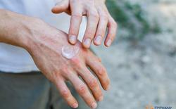 Bảo vệ mình trong đợt nắng kỷ lục để tránh những vết dày sừng tiền ung thư da
