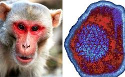 Trung Quốc lại báo cáo một virus lây từ khỉ sang người, nạn nhân đầu tiên đã tử vong