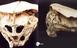 Hộp sọ Rhodope: Bằng chứng về người ngoài hành tinh trên Trái Đất?