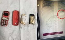 Sợ bị phát hiện, tù nhân nuốt luôn... Nokia 3310 vào bụng