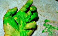 Thú vị hiện tượng máu màu xanh lá cây