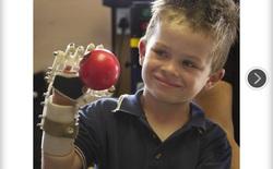 Tay giả từ máy in 3D giúp trẻ em bị khuyết tật ngón tay