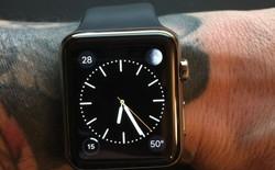 """Muốn xài Apple Watch, hãy """"tạm biệt"""" hình xăm?"""