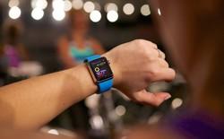 Dù bán chạy, nhưng đây vẫn là lý do khiến Apple Watch không đáng mua