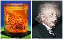 """Khoa học chứng minh câu nói """"to đầu mà dại"""" là không chính xác"""