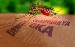 Virus Zika đang gây xôn xao dư luận vì khả năng làm teo não trẻ nhỏ có nguồn gốc từ đâu?