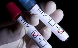 Đã tìm ra tác nhân gây ức chế khả năng lây nhiễm của HIV
