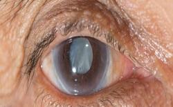 Phát triển thuốc giúp hòa tan đục thủy tinh thể