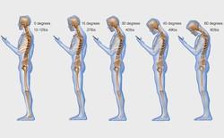 Thói quen sử dụng điện thoại có ảnh hưởng thế nào tới cột sống của bạn?