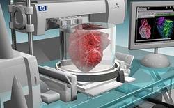 Tái tạo một quả tim người thật bằng công nghệ in 3D