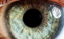Sẽ không còn người mù nữa nhờ kỹ thuật chỉnh sửa gen
