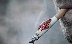 """Xét nghiệm máu cho người hút thuốc """"nhìn thấy quan tài"""" trước 5 năm"""