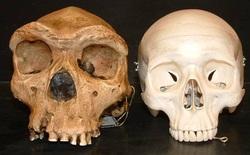 Phát hiện hóa thạch cho thấy ung thư đã có từ thời tiền sử, bác bỏ nhận định của nghiên cứu 6 năm trước