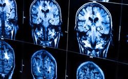 """Các nhà khoa học đã có thể """"copy"""" và """"paste"""" lại các ký ức trong não chúng ta"""