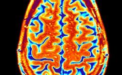 Nghiên cứu chỉ ra não của những người quá béo bị lão hóa hơn 10 năm so với người gầy