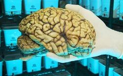 Cùng khám phá ngân hàng não lớn nhất thế giới